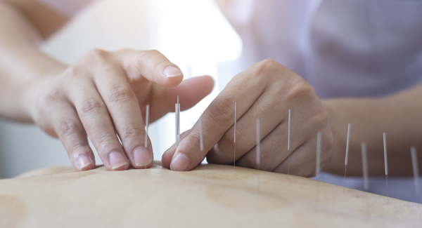 Acupuncture for JA: What You Should Know
