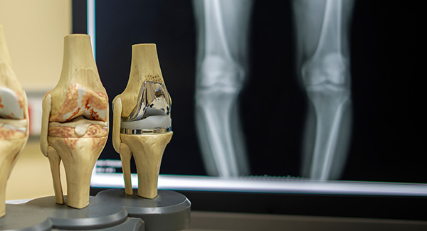Advancing Osteoarthritis Treatments