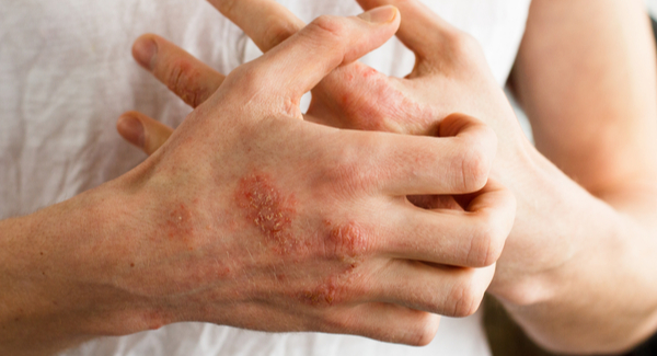 Arthritis and Your Skin